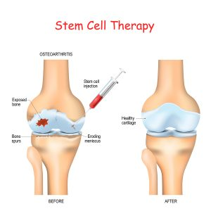 Steroid Injections Are Doing Harm, But Stem Cells Help
