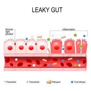 Celiac Disease in Various Disguises