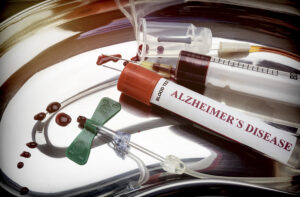 New Alzheimer's Blood Test Is Promising