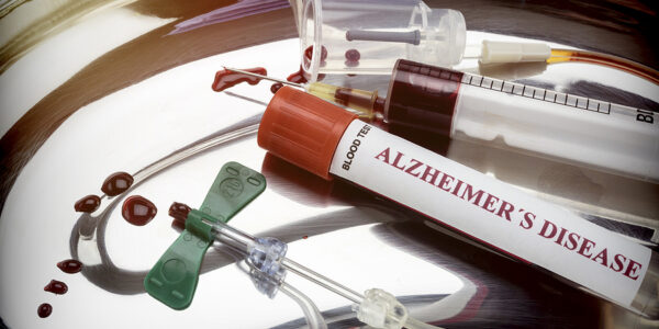 New Alzheimer's Blood Test Is Promising