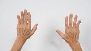 Antibody Treatment for Rheumatoid Arthritis Was Superior